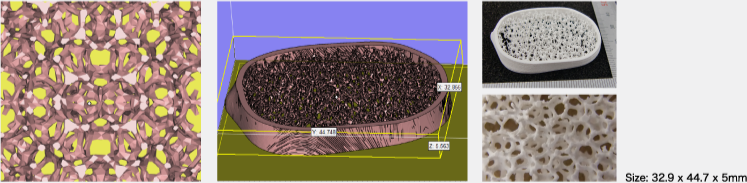 人工骨(ファントム) <span>※データ提供: 千葉工業大学 大野研究室</span>